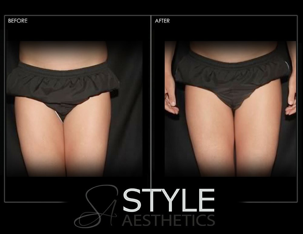 CoolSculpting-Weight-Loss-Fat-Removal-Reduction-Before-After-Photos-Web-Portland-Oregon-0425
