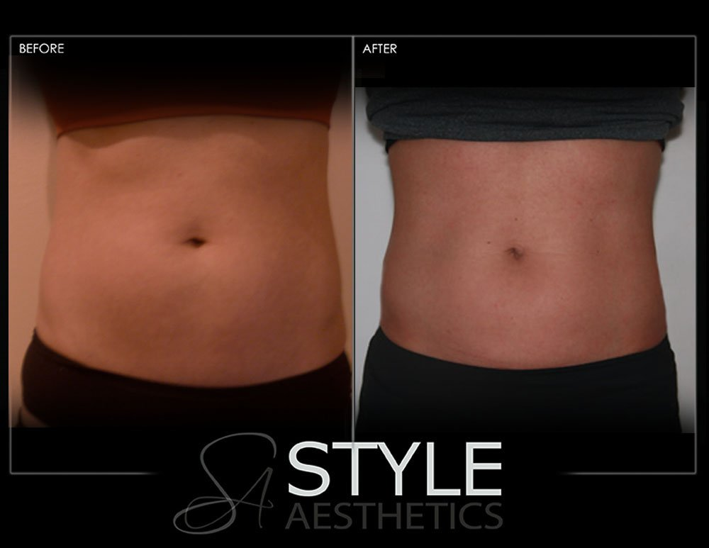 CoolSculpting-Weight-Loss-Fat-Removal-Reduction-Before-After-Photos-Web-Portland-Oregon-0428