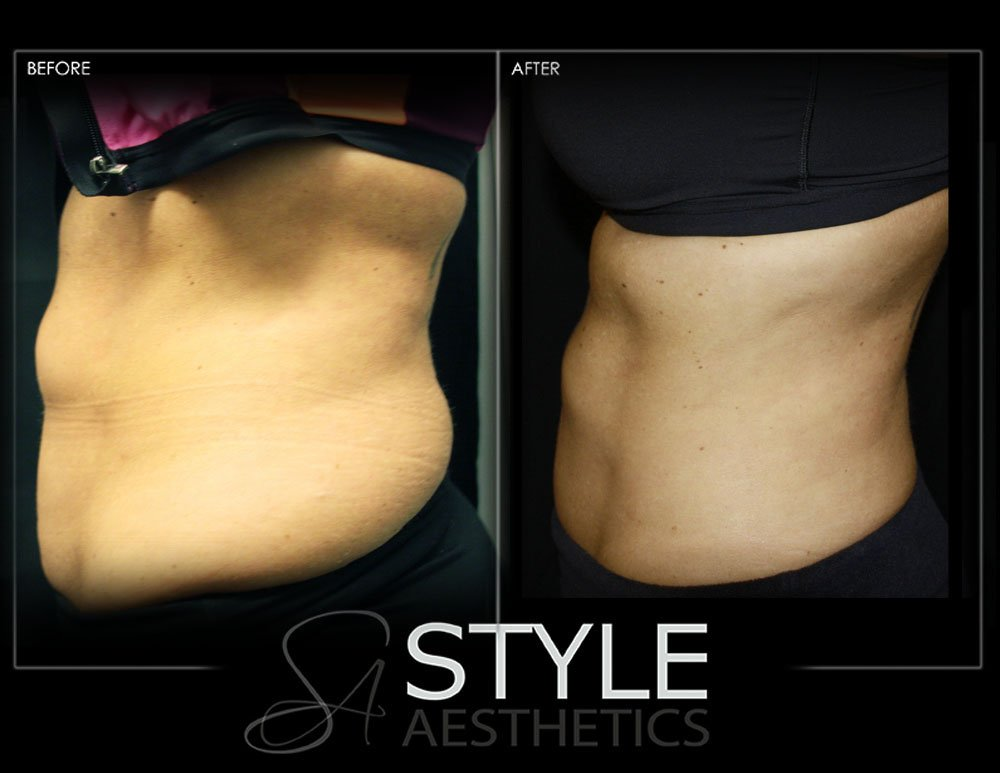 CoolSculpting-Weight-Loss-Fat-Removal-Reduction-Before-After-Photos-Web-Portland-Oregon-0430