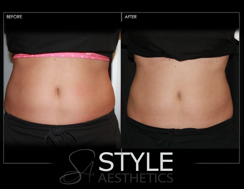 CoolSculpting-Weight-Loss-Fat-Removal-Reduction-Before-After-Photos-Web-Portland-Oregon-0431